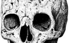 Baby Born With Only Part of Skull Survives