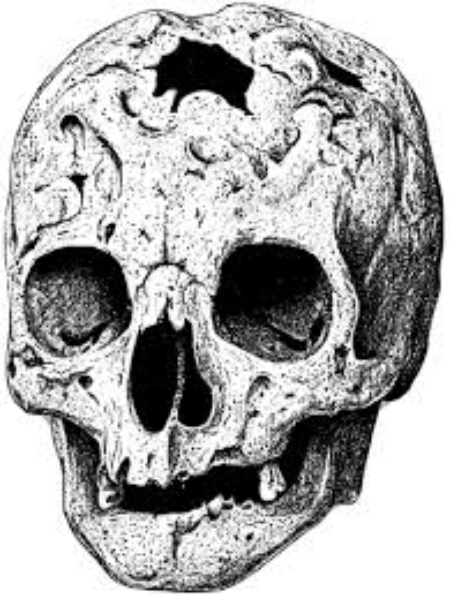 A cracked skull which would normally lead to a person's death.